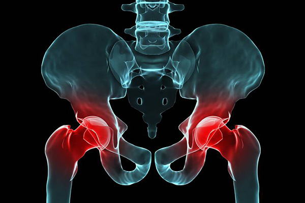 When To See A Doctor For Hip Pain